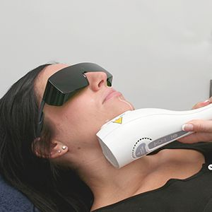 IPL Laser Therapy